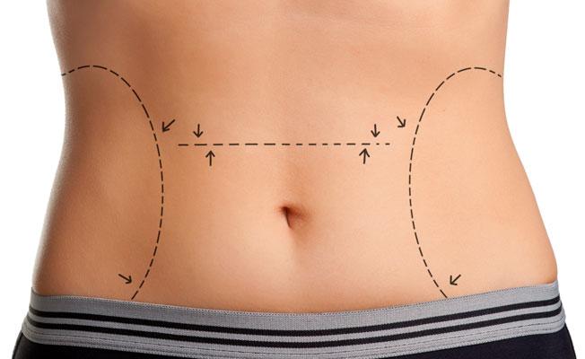 Liposuction, karın germe midir?