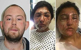 İngiltere'de 2 Müslümana asitli saldırı