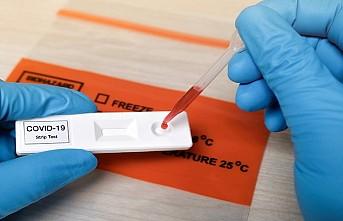 İsveç'te korona virüs için hızlı test geliştirildi