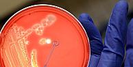 ABD, İngiltere'ye de şarbon bakteri göndermiş!