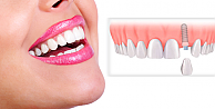 Diş tedavisinde dikişsiz implant devri