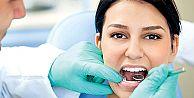 Dişleri sarartan etkenler biliyor musunuz?