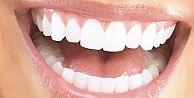 İşte diş düşmanı alışkanlıklar