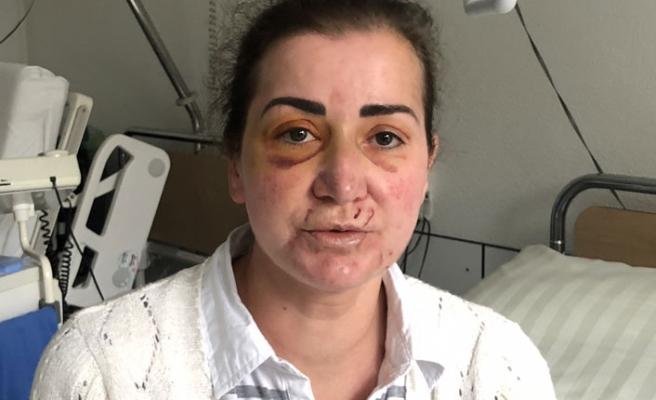 Almanya'da tramvayda Türk kadına saldırı olayında sıcak gelişme