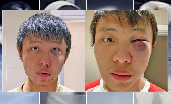 İngiltere'de Singapurlu Öğrenciye Irkçı Saldırı