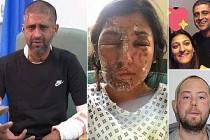 Müslümanlara asitli saldırının zanlısı teslim oldu