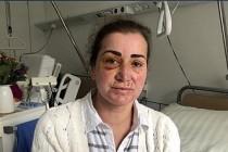 Almanya'da tramvayla işe giden Türk kadına saldırı