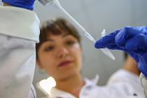 Bilim insanları 4 ölümcül virüs buldu