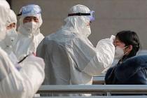 Koronavirüsün en belirgin semptomu açıklandı