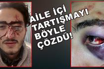 Alman polisi Türk gencini bu hale getirdi