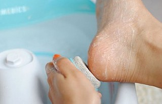 Çatlayan topuklarınıza kendi tedavinizi uygulamayın!
