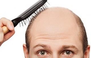 Saçı dökülen erkekler bu habere dikkat!