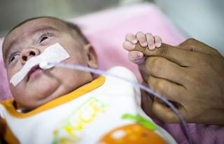 Aras bebek kök hücre tedavisiyle hayata tutundu