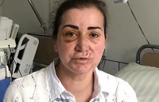 Almanya'da tramvayda Türk kadına saldırı...