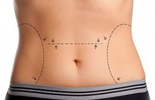 Liposuction zayıflama yöntemi midir?