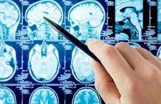 ALS hastalığı erkeklerde daha sık görülüyor
