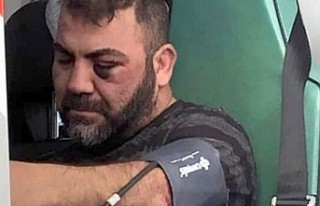 Almanya'da yaşayan Türk'e polis şiddeti...