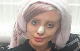 Sosyal medyada fenomen olan 'İran'ın Angelina...