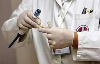 Bilim insanları prostat kanserine yolaçan gıdaları...