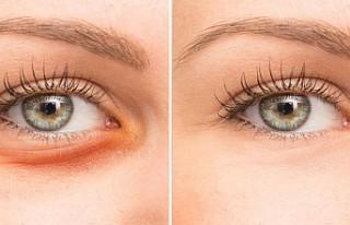 Göz altı yağ torbalarına alternatif tedavi