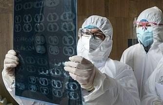 Koronavirüsün Bazı Belirtileri Yanıltıyor!