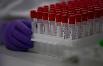 AB'den Covid-19 aşısı için 300 milyon dozluk anlaşma